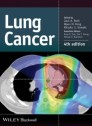 Lung Cancer [Hardcover]