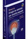 Manual de cirug�a de cataratas con incisi�n peque�a